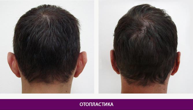 Отопластика (пластика ушных раковин) - фото до и после № 4