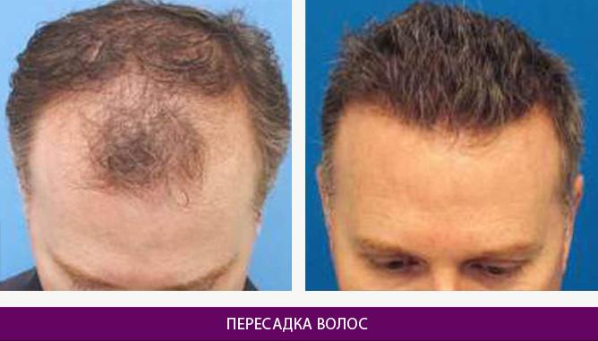 Пересадка волос - фото до и после № 2