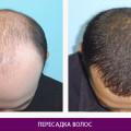 Пересадка волос - фото № 1