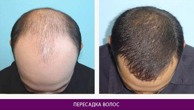 Пересадка волос - фото до и после № 1