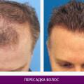 Пересадка волос - фото № 2