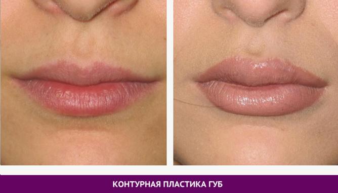 Контурная пластика губ - фото до и после № 2