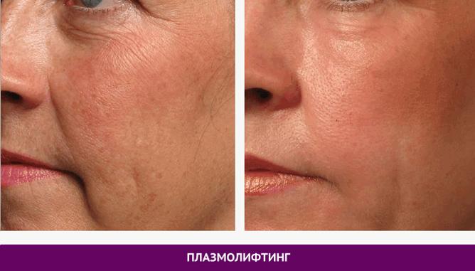 Плазмолифтинг - фото до и после № 2