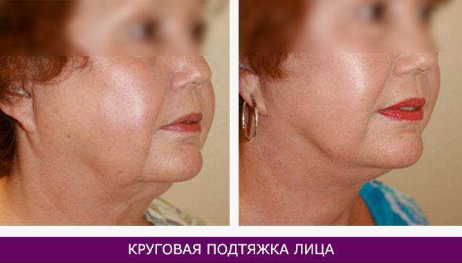 Подтяжка лица - фото до и после № 1