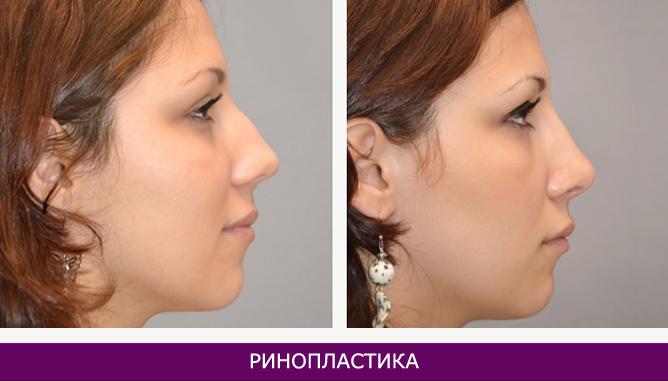 Ринопластика (пластика носа) - фото до и после № 1