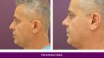 Ринопластика (пластика носа) - фото до и после №2