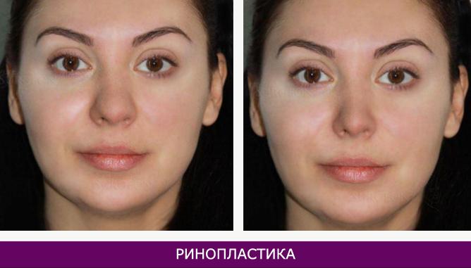 Ринопластика (пластика носа) - фото до и после № 7