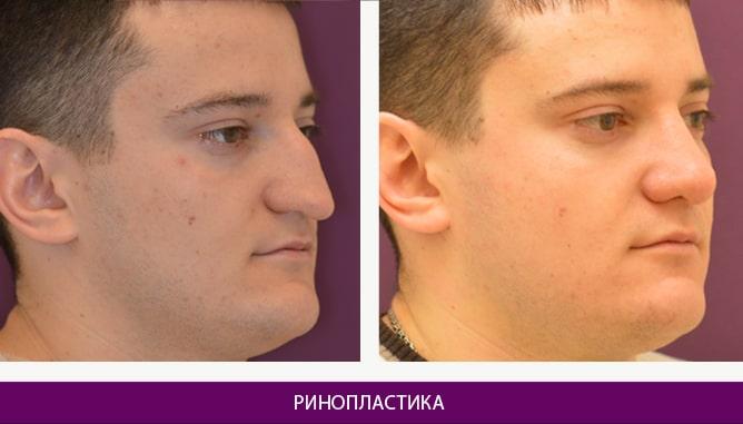 Ринопластика (пластика носа) - фото до и после № 8