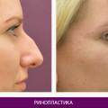 Ринопластика (пластика носа) - фото № 6