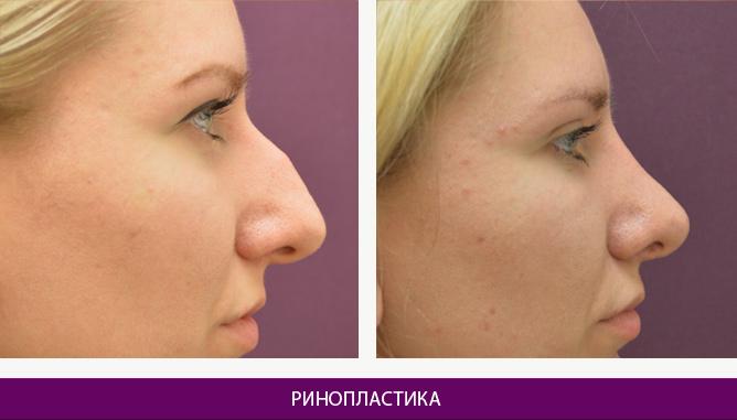 Ринопластика (пластика носа) - фото до и после № 6