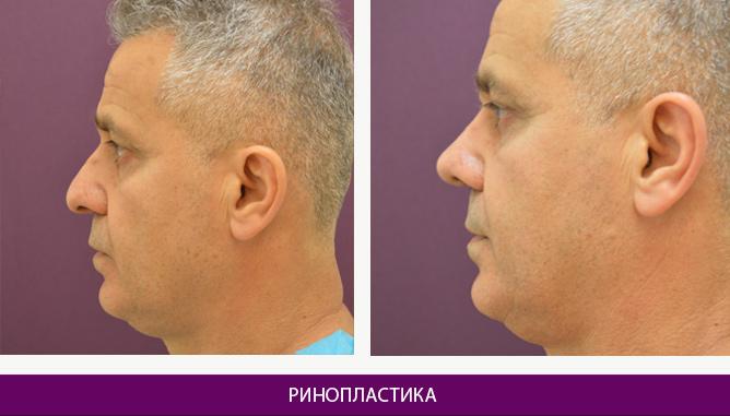 Ринопластика (пластика носа) - фото до и после № 2