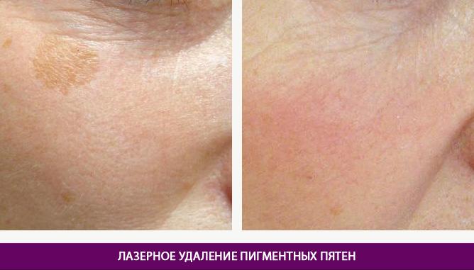 Лазерное удаление пигментных пятен - фото до и после № 2