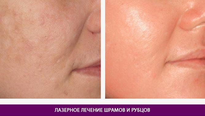 Лазерное лечение шрамов и рубцов - фото до и после № 1