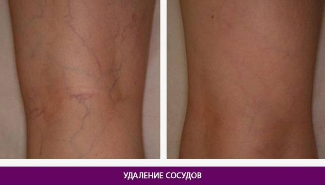 Лазерное удаление сосудов - фото до и после № 3