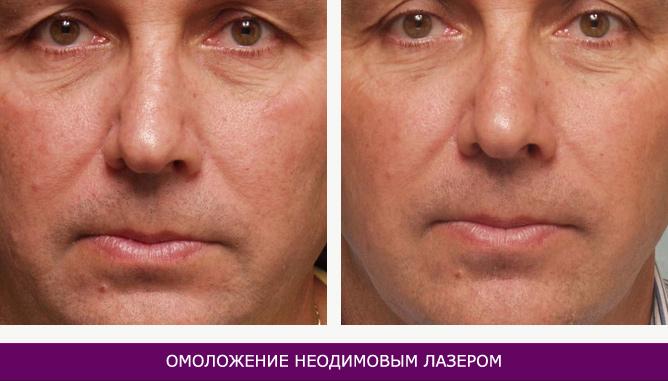 Омоложение неодимовым лазером - фото до и после № 2