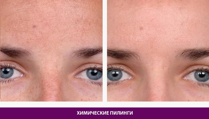 Химические пилинги - фото до и после № 2