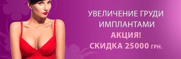 Увеличение груди имплантами, скидка 25000 грн.