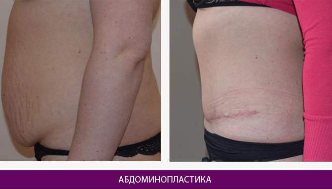 Абдоминопластика - фото до и после № 1