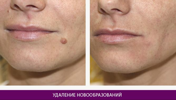 Лазерное удаление новообразований - фото до и после № 1