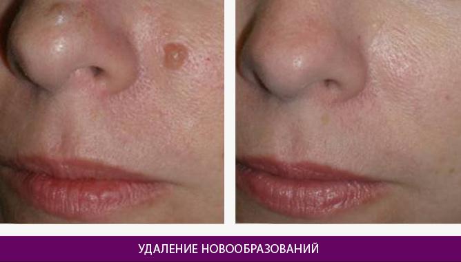Лазерное удаление новообразований - фото до и после № 2